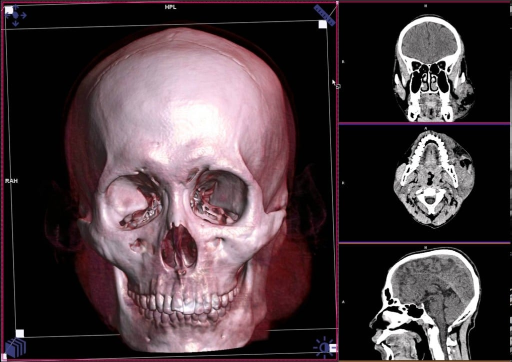 FBI researchers match CT scan data with patient photos