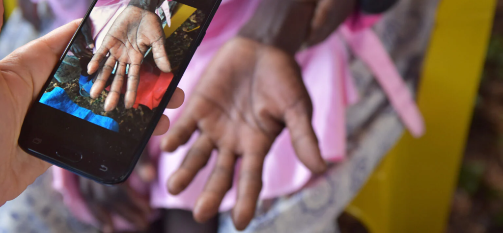 Ghana to become first country to use contactless biometrics in national vaccination program